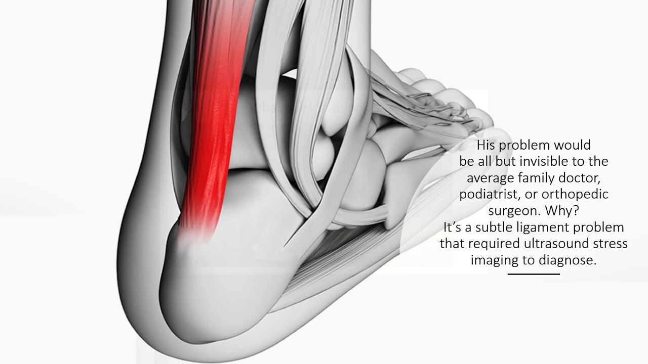 Outside Ankle Pain What Could Be Wrong Regenexx Blog
