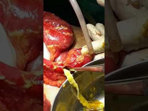 Terhes és szoptató férgek gyógyszere
