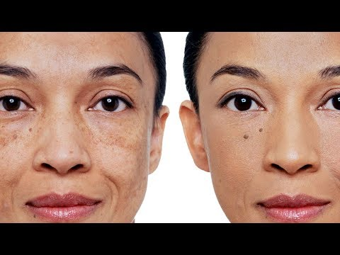 Перекись водорода отбеливает кожу в отбеливает кожу