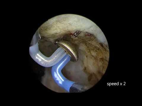 Erecton für Prostata-Instrument