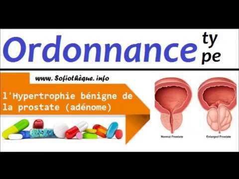 Procédures dans le traitement de la prostatite