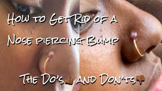 How To Get Rid Of Nose Piercing Scar