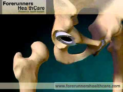 Osteocondrosi delle video lezioni della colonna vertebrale cervicale