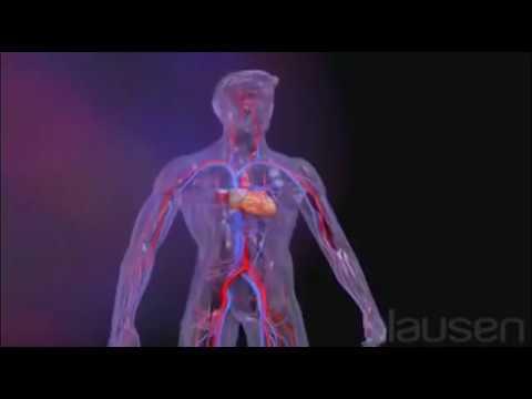 Traiter lhypertension artérielle