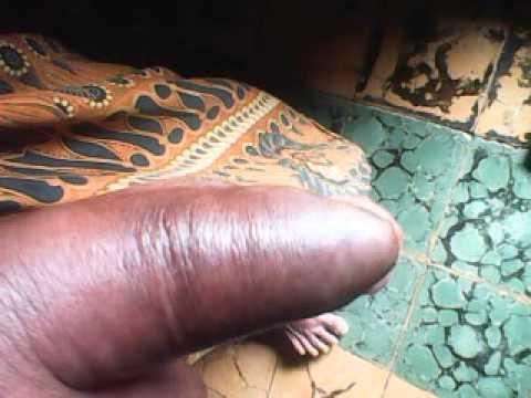 Video NYATA : Nyawa orang ini selamat, setelah digigit ular KOBRA namun...