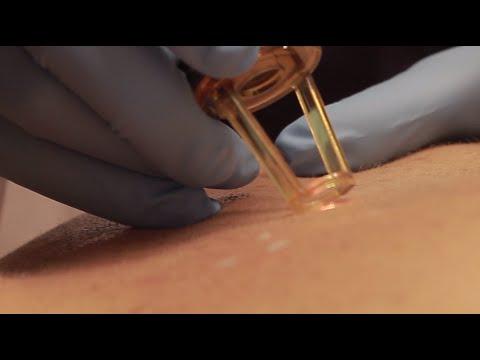 Affronti il pacco con una decolorazione di curcuma