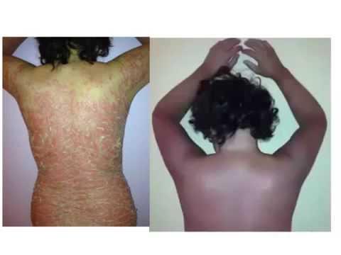 Pikkelysömör és dermatitis kezelése
