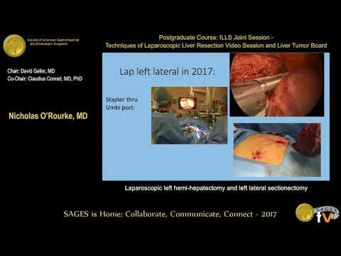 Laparoskopowa hemihepatektomia i segmentektomia lewostronna
