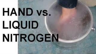Hand vs. Liquid Nitrogen and the Leidenfrost Effect