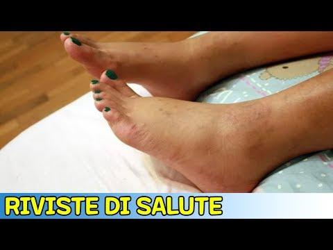 Formicolio alle articolazioni delle mani e dei piedi