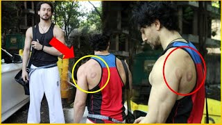 How Did These Marks Are On Tiger Shroff's Back, Did The Actor Had Cupping Therapy?
