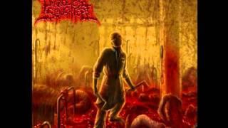 Defecated Fetuses - Diabolical Slaughter
