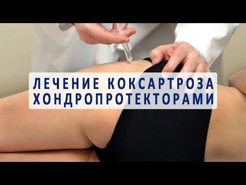 Использование хондропротекторов в лечении коксартроза тазобедренного сустава
