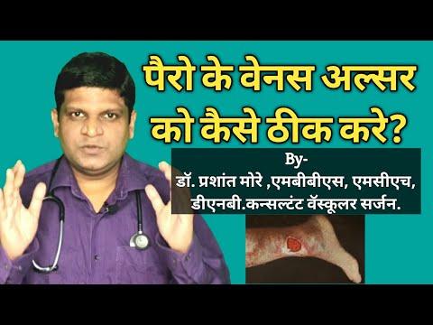 Bandage salină și varicoză