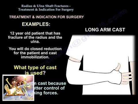 Stavoza durerii articulare