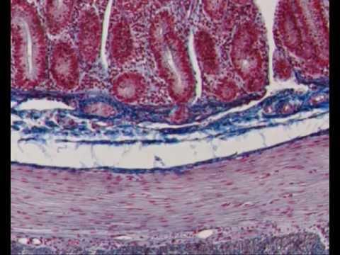 Comme traiter la thrombose les préparations