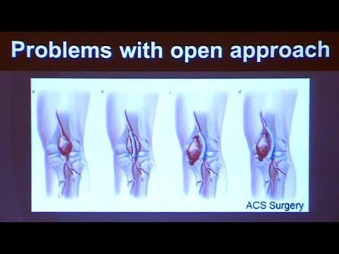 Unguento per il trattamento di osteocondrosi