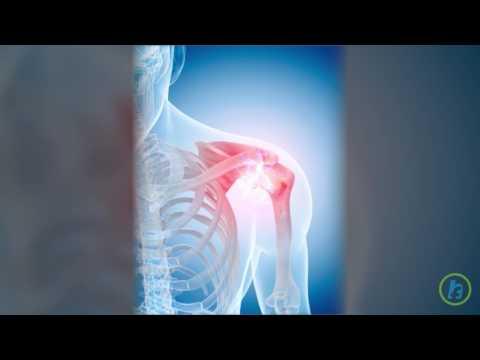 Tratament cu gută de artroză