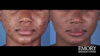 Chemical Peels at Emory Aesthetic Center