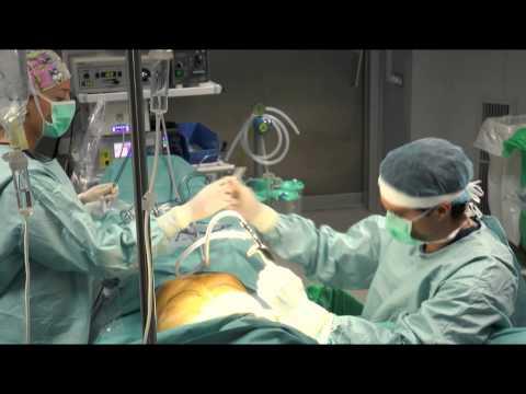 De pecho implanty comprar