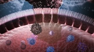 Immunology in the Gut Mucosa