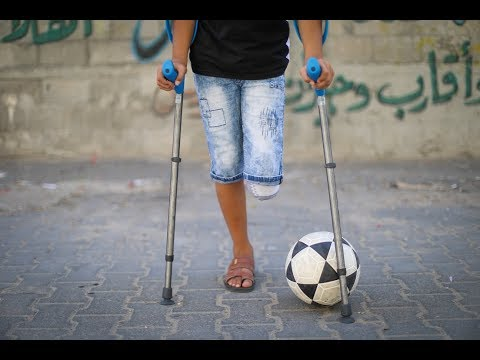 Gaza boy fitted for prosthetic leg in Ohio