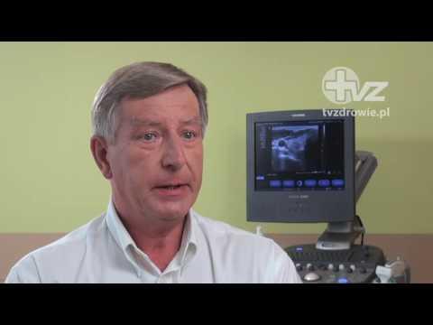 Chirurgia sutka zapalenie wątroby