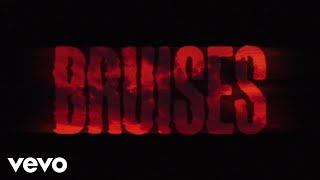 Lewis Capaldi - Bruises (Lyric Video) - YouTube
