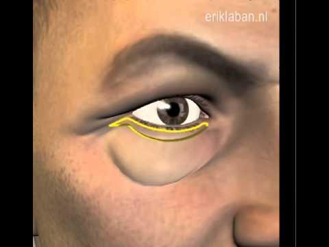 video Onderooglidcorrectie thumbnail