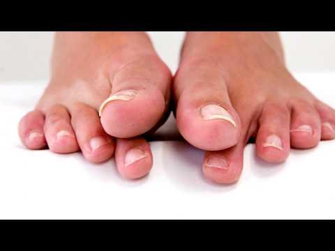 Травма печени диагностика лечение