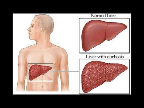 Die Biopsie der Haut beim Ekzem