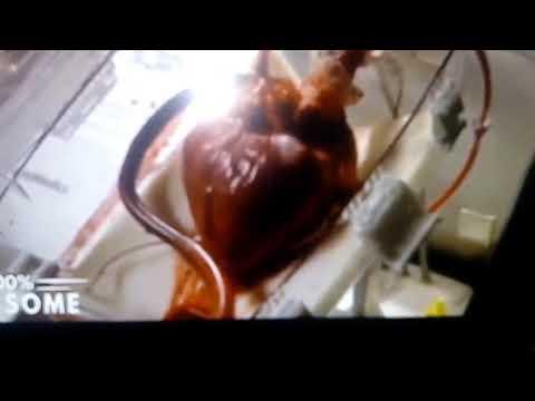 Wysokie ciśnienie krwi z kaca