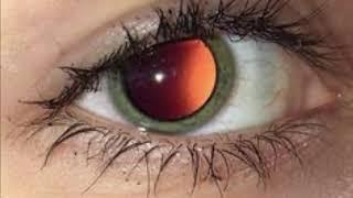 Glassy eyes - unknown