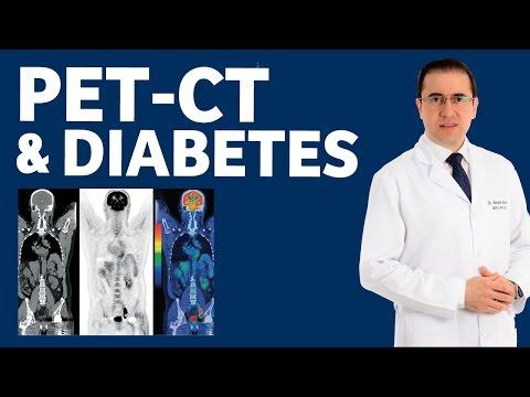 O que causou a perda de peso dramática para o diabetes