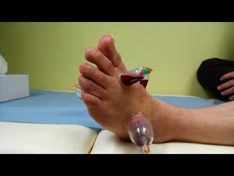 Chi contattare in caso le articolazioni del gomito dolorante