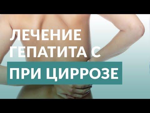 Гепатит с. Лечение при циррозе. Врач гепатолог.