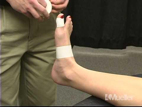 Что такое артроз первой степени коленного сустава лечение