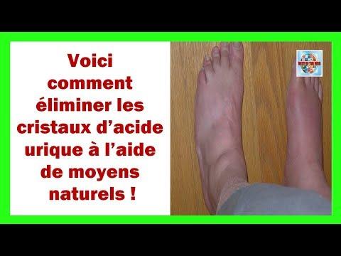 Les symptômes de leczéma sur la peau de mains