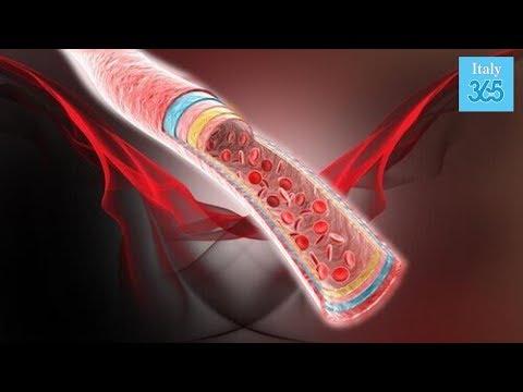 Mettere sanguisughe con osteoartrosi del ginocchio