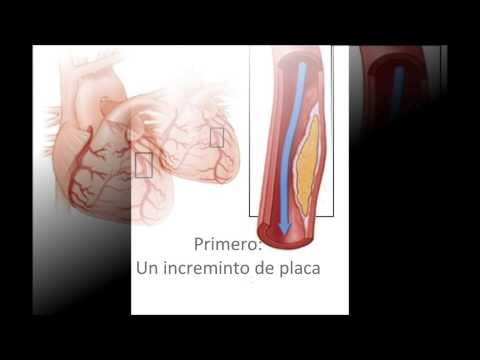 Pressione sanguigna diastolica aumento cause