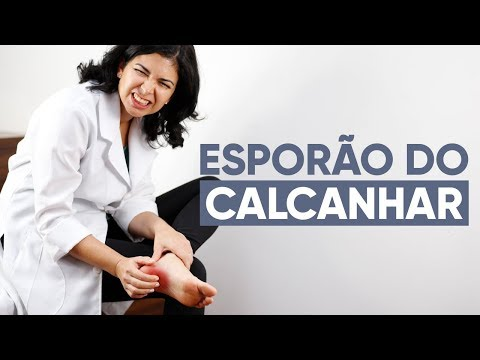 Imagem ilustrativa do vídeo: ESPORÃO NO CALCANHAR: O que fazer