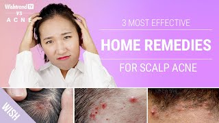 How to Get Rid of Scalp & Back of Neck Acne Naturally!   3 Most Effective Home Remedies