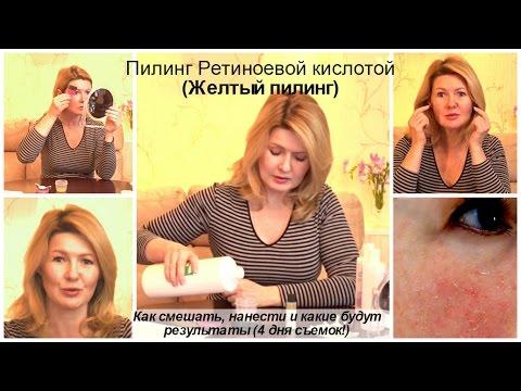Kremy plam pigmentowych kosmetista