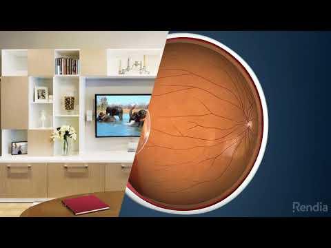 Hogyan lehet javítani a látást szürkehályoggal