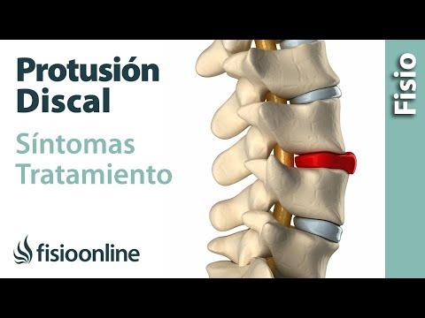 Tabletas a osteocondrosis