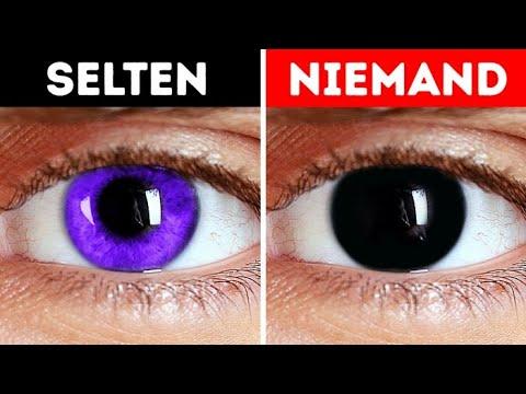 Augenfarbe ist selten welche Unsere Augenfarbe