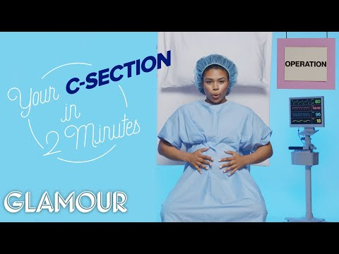 This is Your C-Section in Two Minutes   Glamour