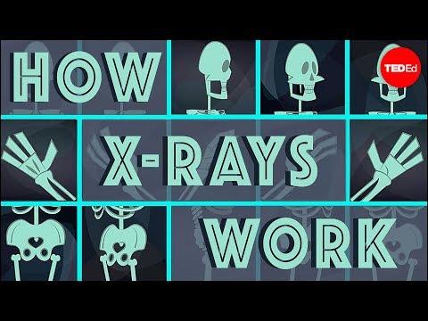 הסרטון הקצר הזה ילמד אתכם איך צילום רנטגן עובד
