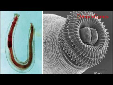 Борьба с паразитами человека травами
