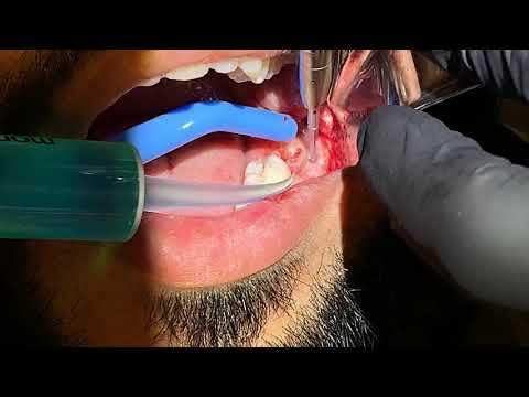 Surgical Wisdom Tooth Extraction (LL8) by Specialist Oral Surgeon Dr. Abdul Dalghous